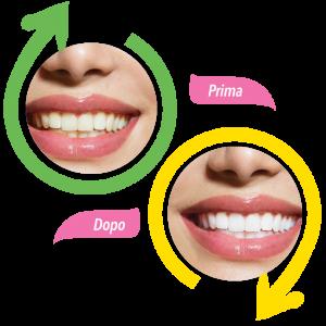 sbiancante denti