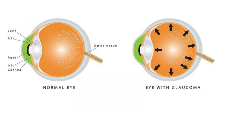 Cosa è il glaucoma? Come è possibile prevenire e curarlo?